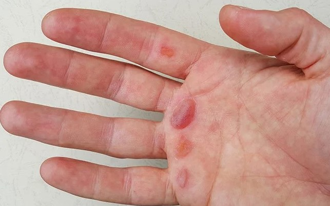 What causes blisters